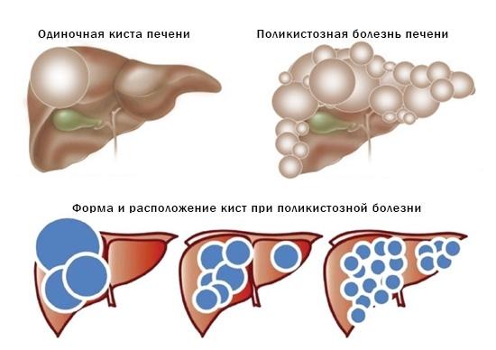 От кисты печени и почек можно избавиться без операции