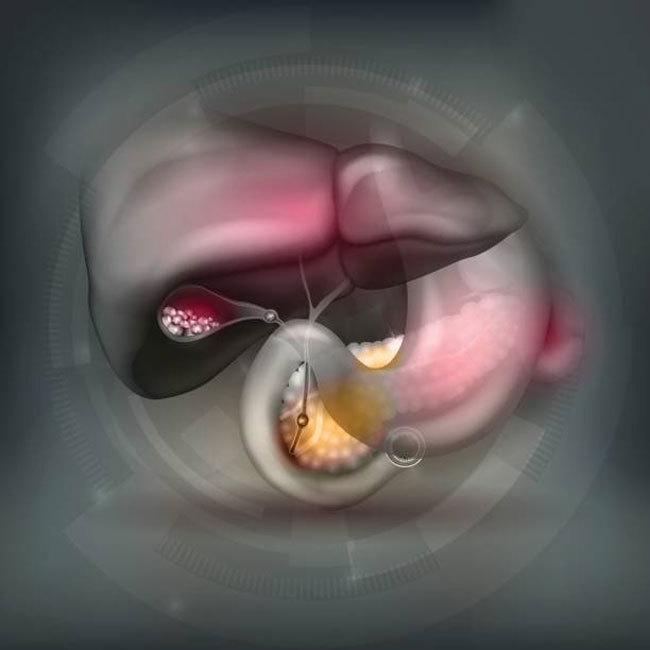 Окаменевшая агрессия: Камни в желчном пузыре