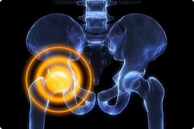 11 упражнений при коксартрозе