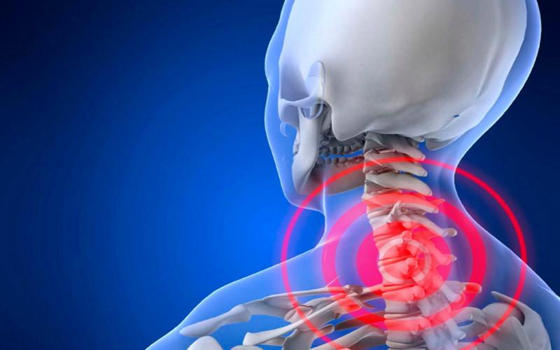 Боли в шейном отделе позвоночника и болит голова