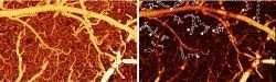 Слева (а) показывает мозг мыши перед кокаином. Справа (б) кровеносные сосуды темнее, что означает более низкий кровоток.