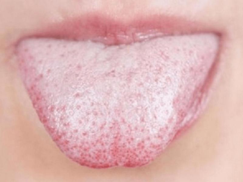 УЗНАЙТЕ: Цвет, структура и влажность языка расскажут о наличии проблем со здоровьем
