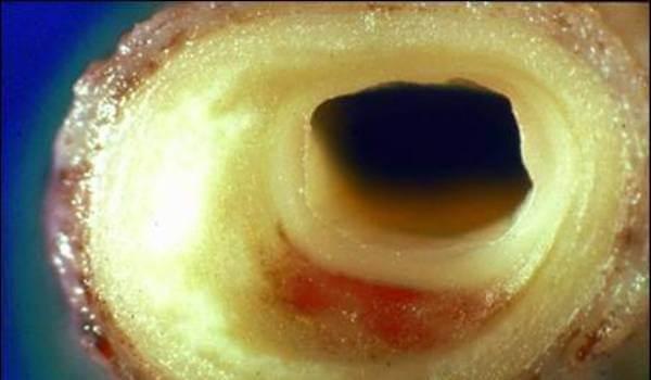 Холестериновая страшилка, которая правит миром
