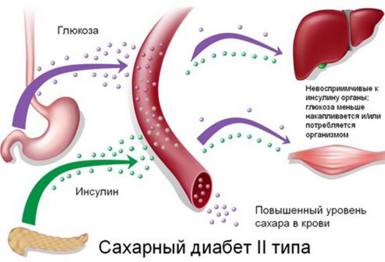 Потенция и диабет 1 типа