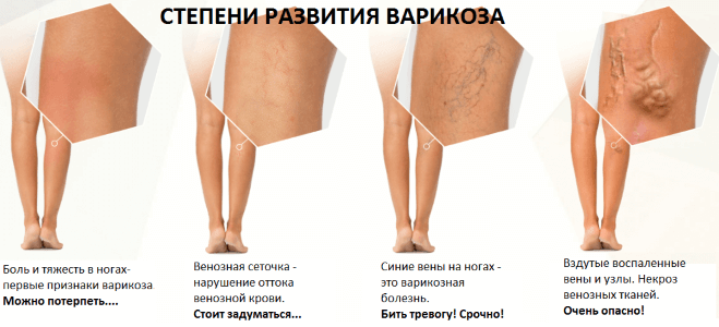 Лечение варикоза ног в зависимости от стадии заболевания