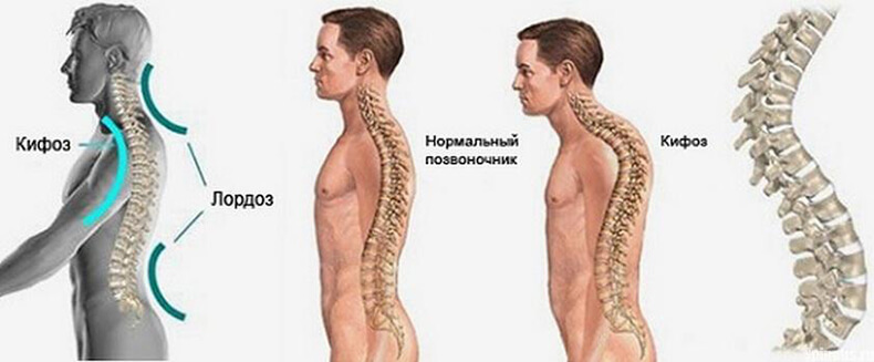 Чрезмерный грудной кифоз: гораздо больше, чем плохая осанка
