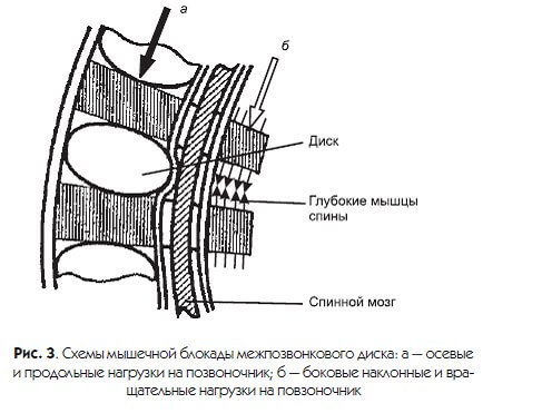 Как избежать заболеваний позвоночника: 2 рекомендации по профилактике мышечных блокад дисков