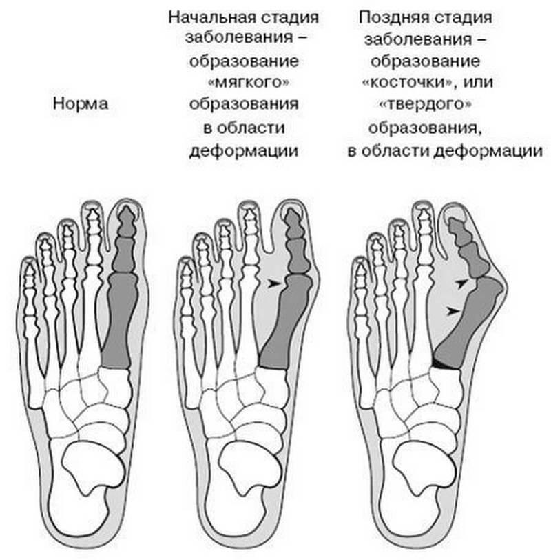Можно ли избавиться от косточки на ногах