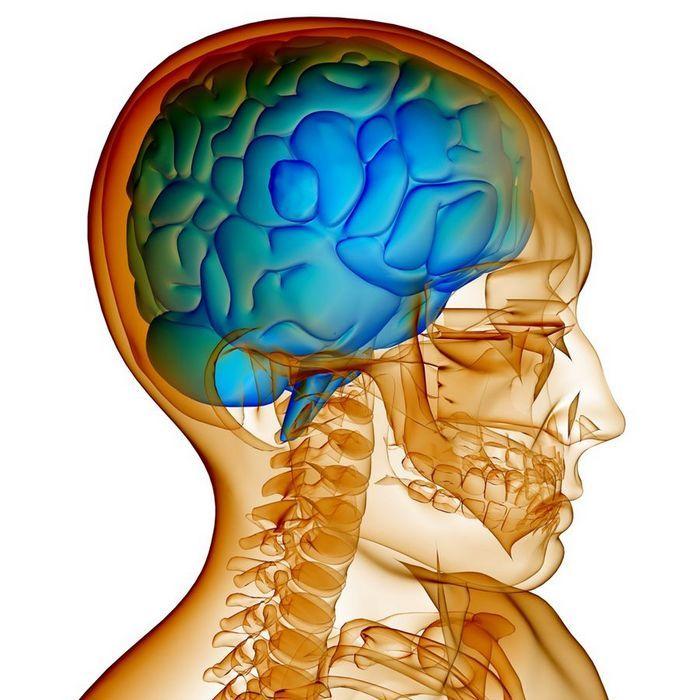 Как избавиться от головной боли, вызванной повышением внутричерепного давления без таблеток