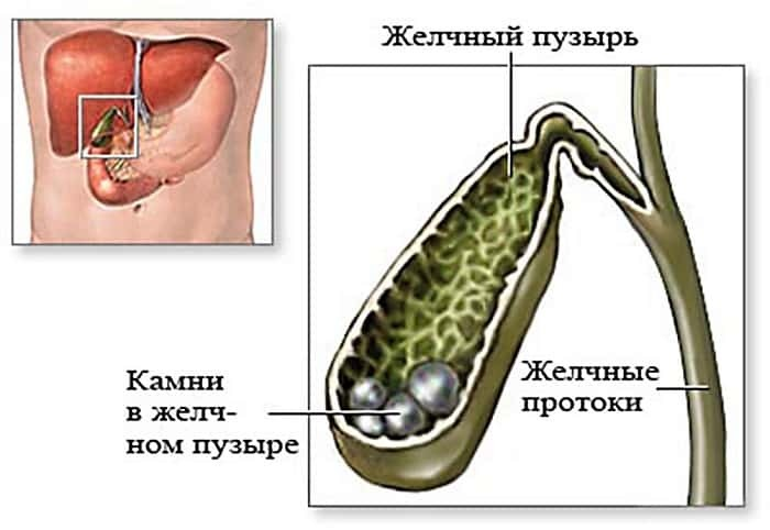 Желчные люди: 5 болезней, которые могут прятаться в желчном пузыре