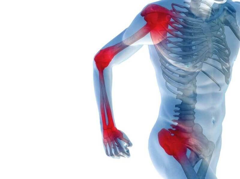 Мышечные болевые синдромы: 5 заблуждений