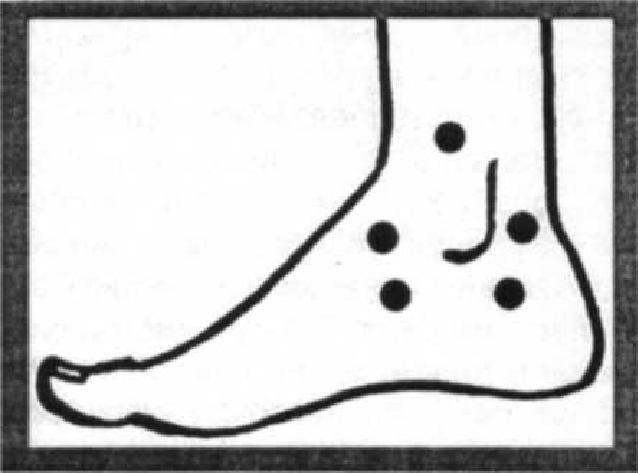Если сустав ноги поражен артрозом: Целебные упражнения даже для запущенных случаев
