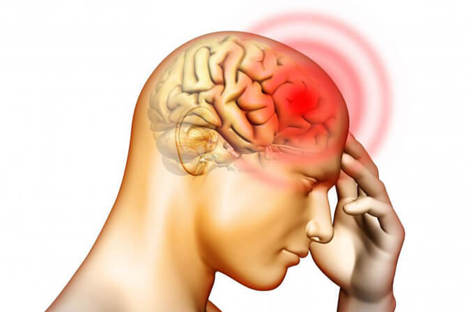 Может ли от нервов болеть голова