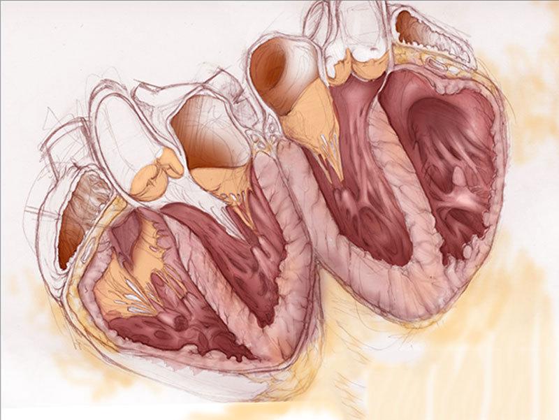 Учащённое сердцебиение: 6 малоизвестных причин проблемы