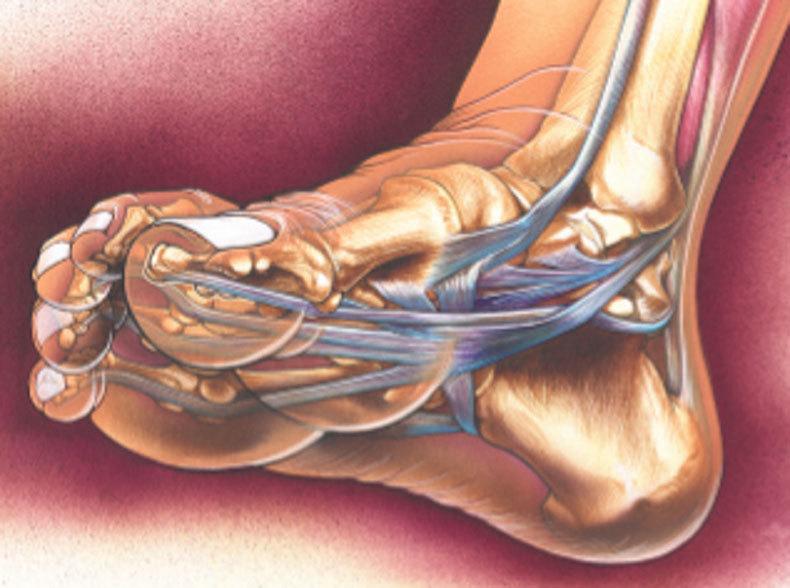 Лечебная гимнастика при заболевании суставов пальцев ног артроз тазобедренного сустава у ребенка причины