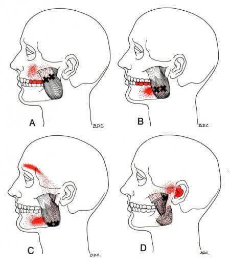 2 упражнения для снятия зажимов ЖЕВАТЕЛЬНОЙ мышцы