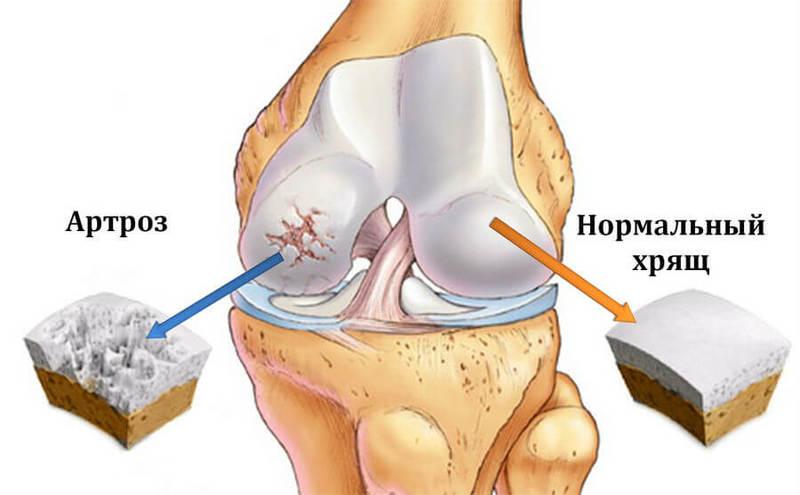 Когда болят суставы на коленях суставная капсула состоит из рыхлой соединительной ткани