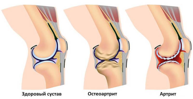 Скрипят и хрустят суставы как лечить хирургическим методом артроз каленного сустава