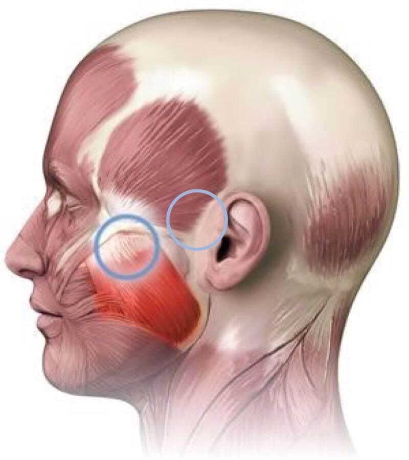 Гипертонус жевательных мышц: на ЧТО влияет и КАК избавиться
