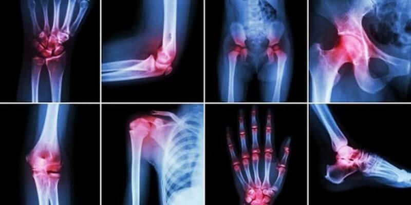 Ревматоидный артрит: Эффективные методы самопомощи