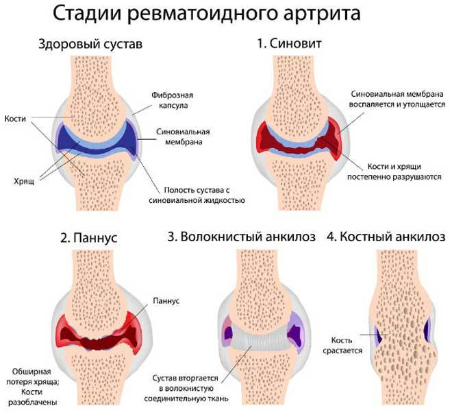Артрит ревматоидный плечевого сустава болят суставы после отжиманий