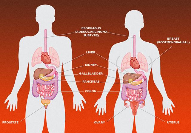 Повышенный уровень САХАРА в крови способствует развитию рака