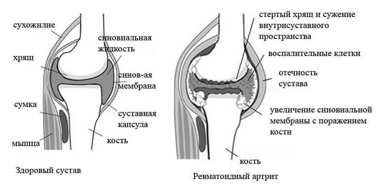ПСИХОСОМАТИКА: ревматоидный и реактивный АРТРИТ