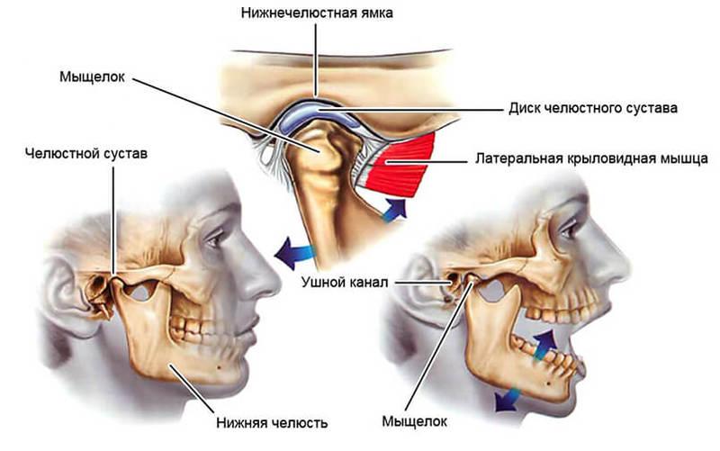 Растяжение связок височно-нижнечелюстного сустава лечение как избавиться от боли в суставах плеча