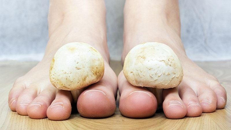 Эффективные рецепты для борьбы с грибковой инфекцией