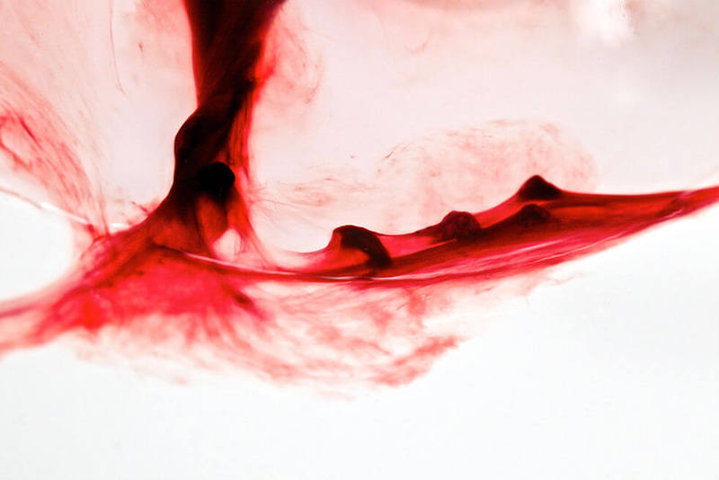 Железодефицитная анемия как с ней бороться thumbnail