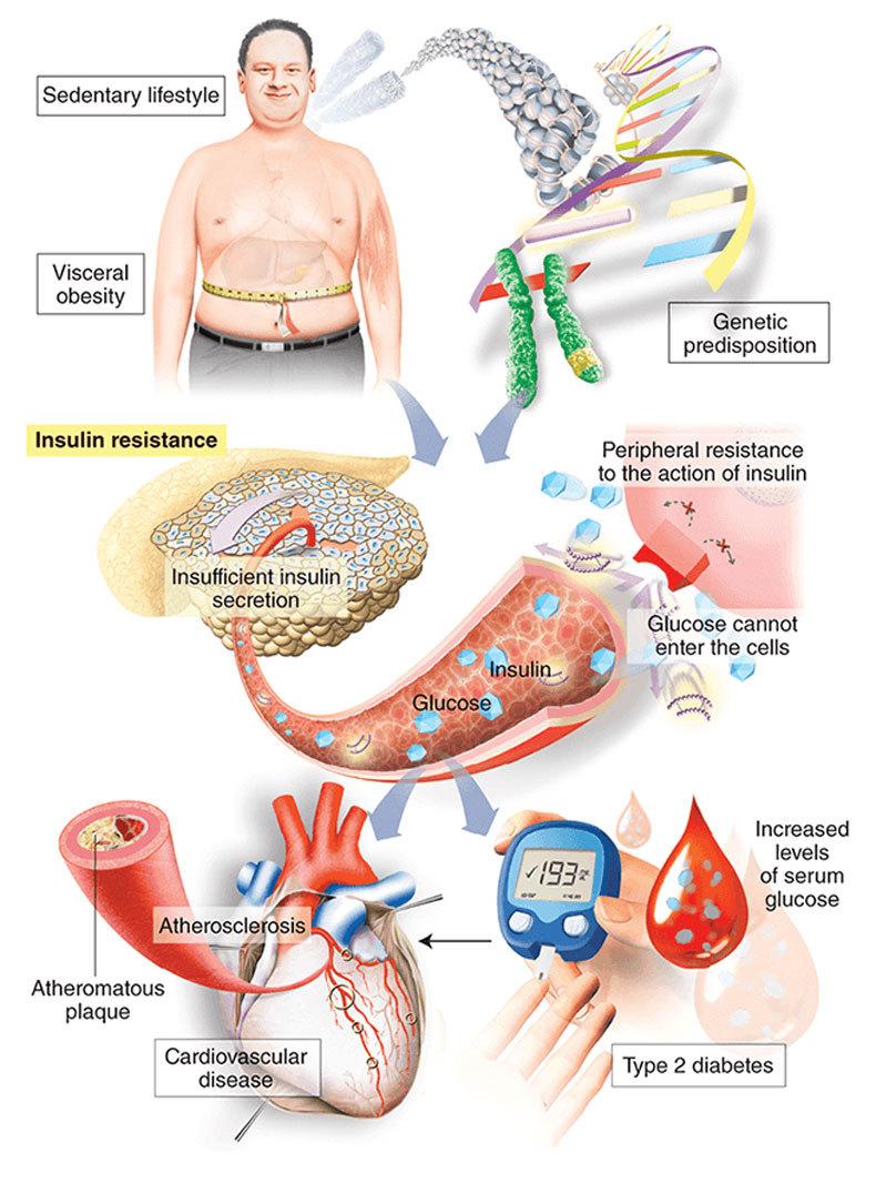 САХАРНЫЙ ДИАБЕТ: лечение створками фасоли