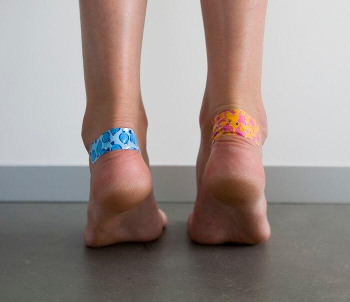Что делать чтобы туфли не натирали мозоли thumbnail