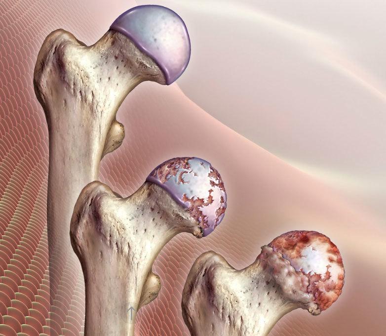 Коксартроз тазобедренного сустава: упражнения и методы лечения
