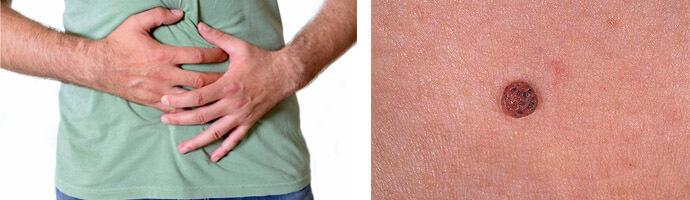 папилломы на теле это главный признак наличия паразитов thumbnail