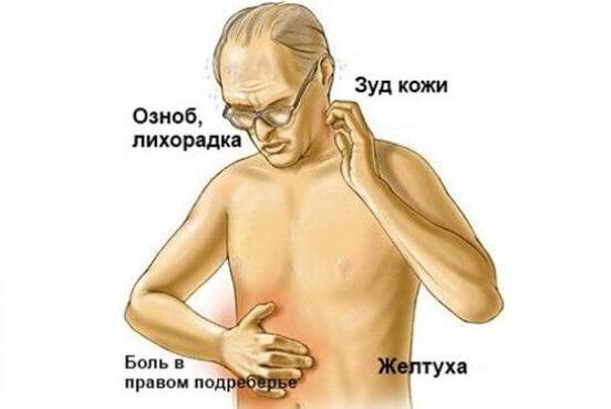 Холестатический ГЕПАТИТ: причины и симптомы