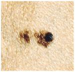 ОПАСНЫЕ РОДИНКИ: 6 признаков меланомы