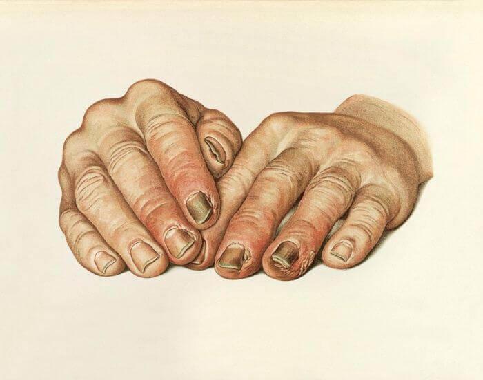 РОЖА – болезнь молодых мужчин и пожилых женщин