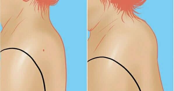ВДОВИЙ ГОРБ: Почему нужно лечить отложение солей на шее