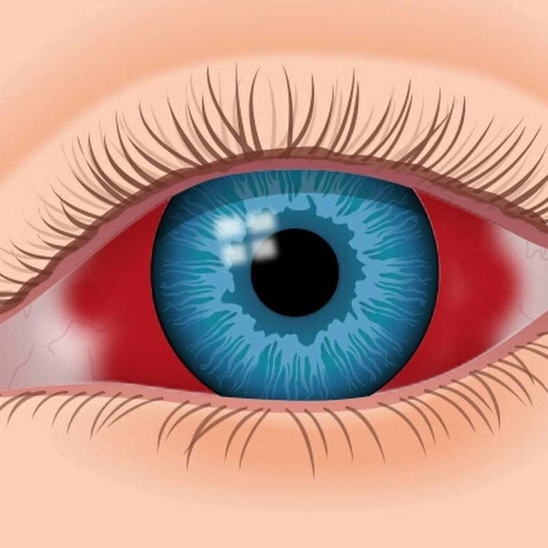 Воспаления глаз в картинках