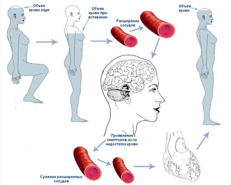 Гипотензия: Почему падает ДАВЛЕНИЕ и ЧТО делать