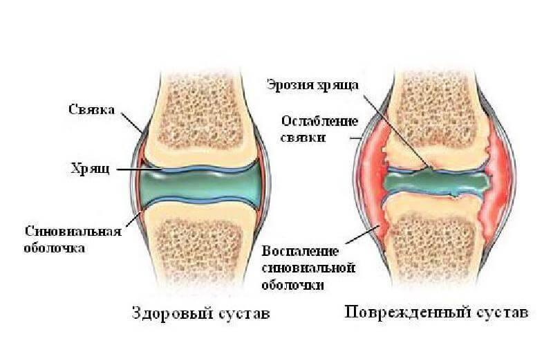 Изображение - Хрустят суставы во время тренировки content_5