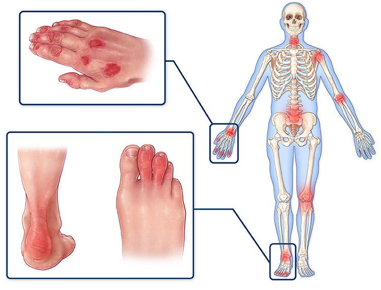 Болят все мышцы и суставы тела причины Лор и Простуда