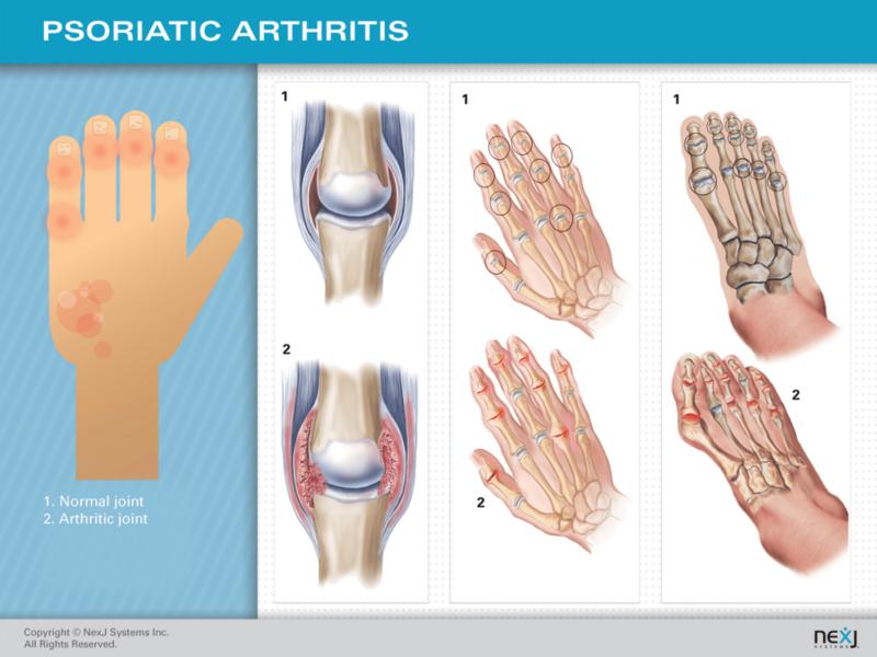 Изображение - Скованность суставов при псориазном артрите content_Psoriatic-Arthritis