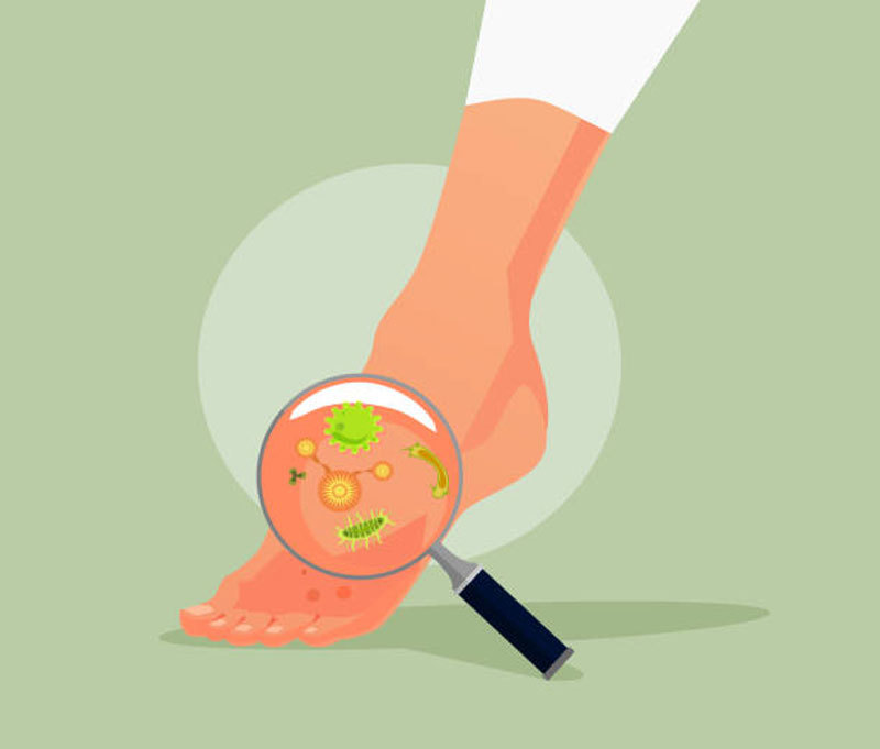 Грибок ногтей: Как победить при помощи уксуса и пищевой соды?