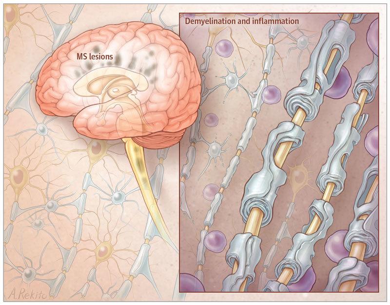 Рассеянный склероз: Уолс диета для лечения заболевания
