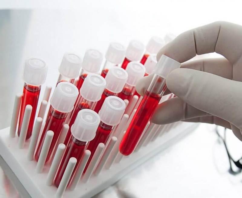 9 ГЛАВНЫХ показателей крови, которые расскажут о здоровье