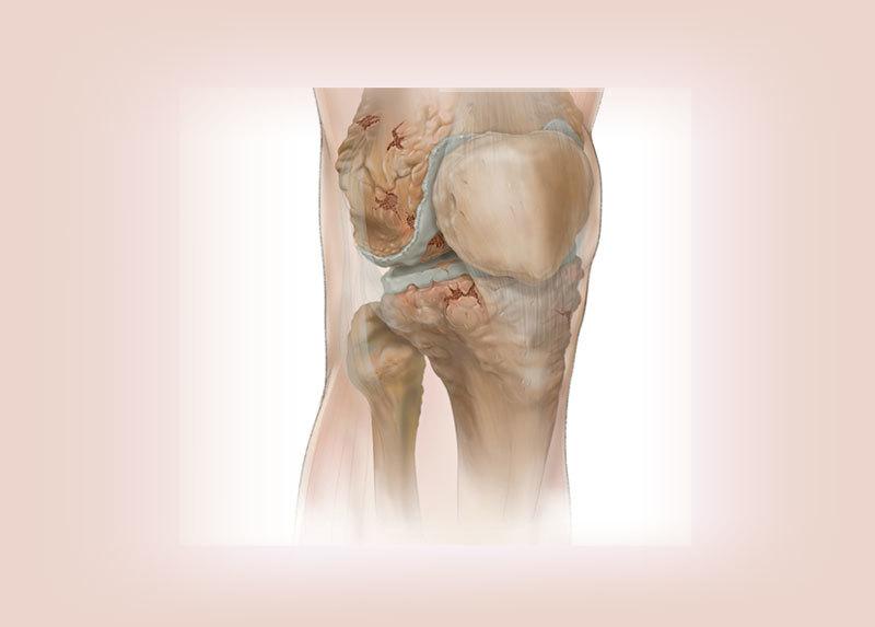 болит височно нижнечелюстной сустав лечение