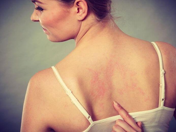 Сгустки в крови: 8 настораживающих симптомов