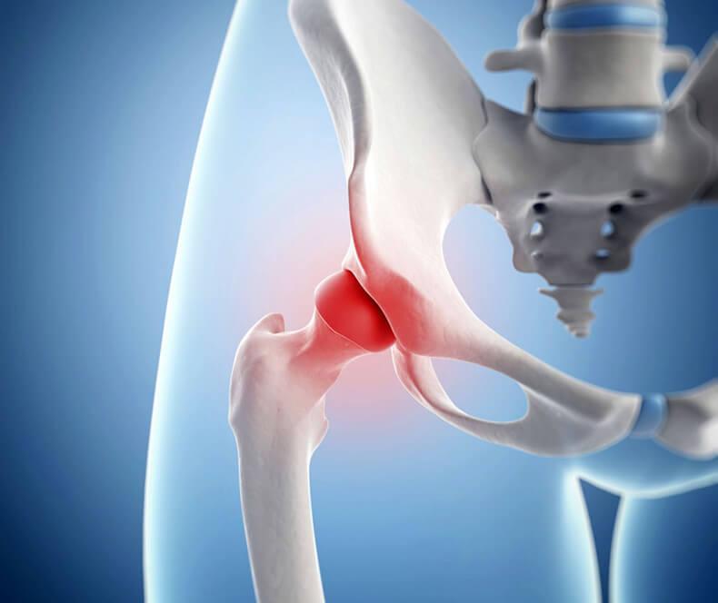 Болит тазобедренный сустав с правой стороны причины
