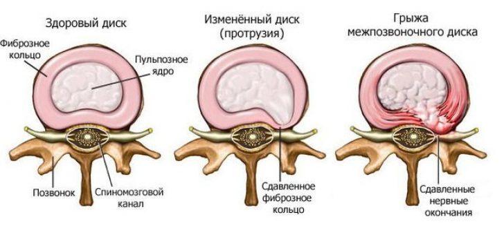 Разрыв фиброзного кольца лечение народными средствами thumbnail